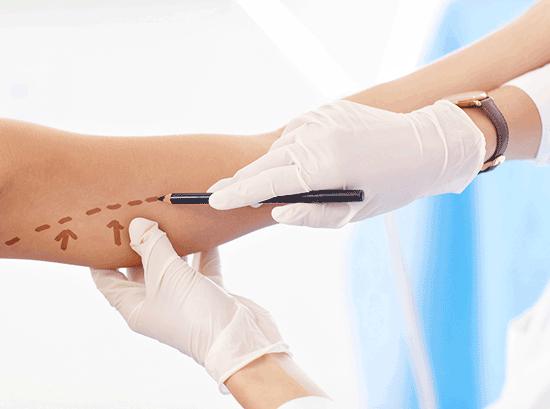 جراحی لیفت بازو یا براکیوپلاستی