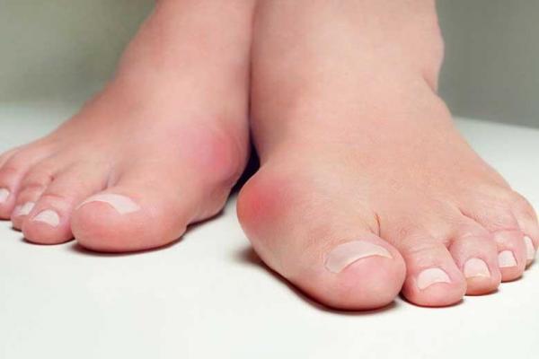 انحراف انگشت شست پا را چگونه درمان کنیم؟