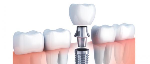 جراحی ایمپلنت دندان و نکاتی که باید راجع به آن بدانید