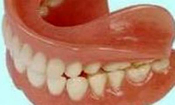 طرز مراقبت از دندان مصنوعی